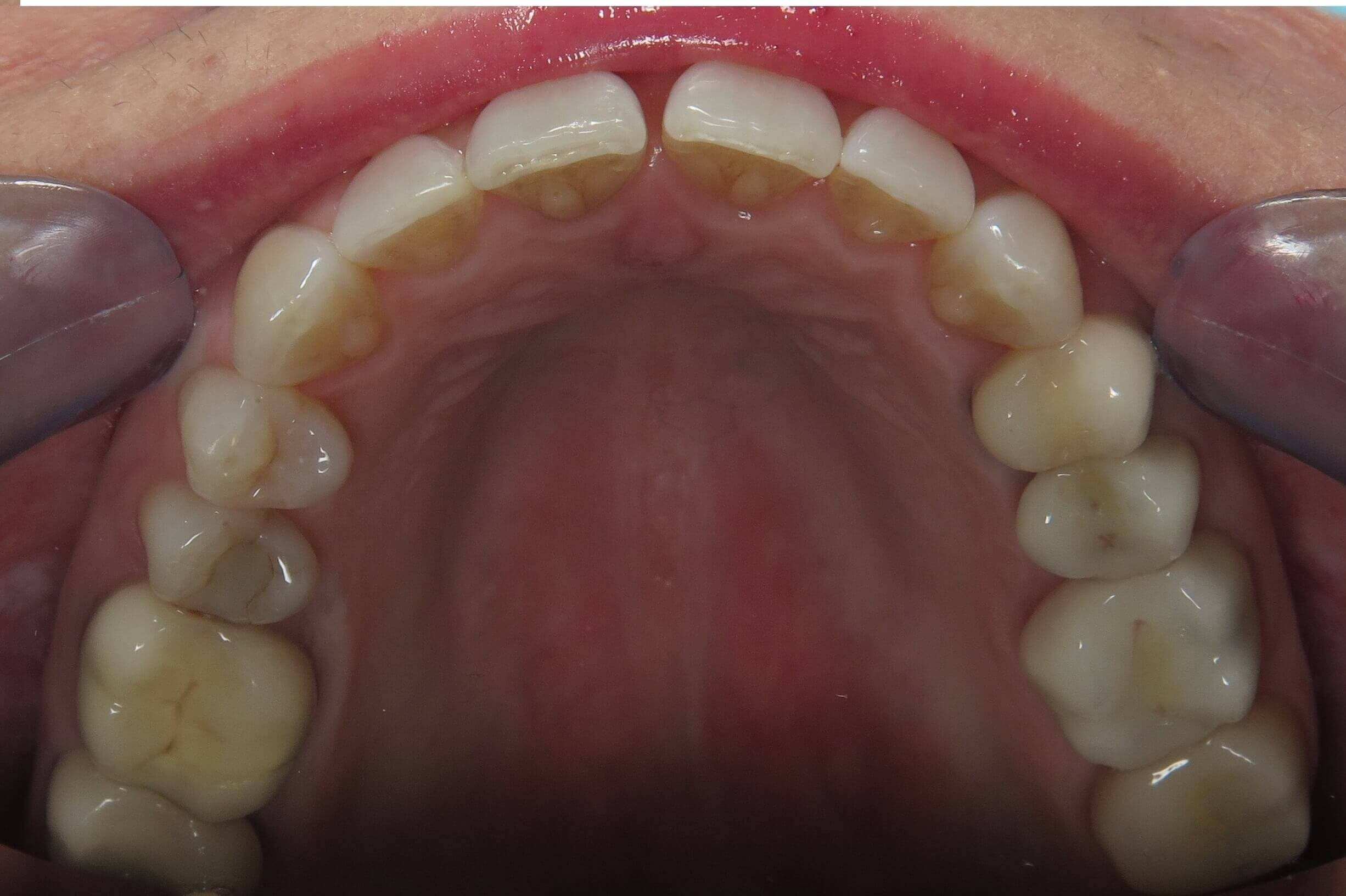 Invisalign Before and After Before