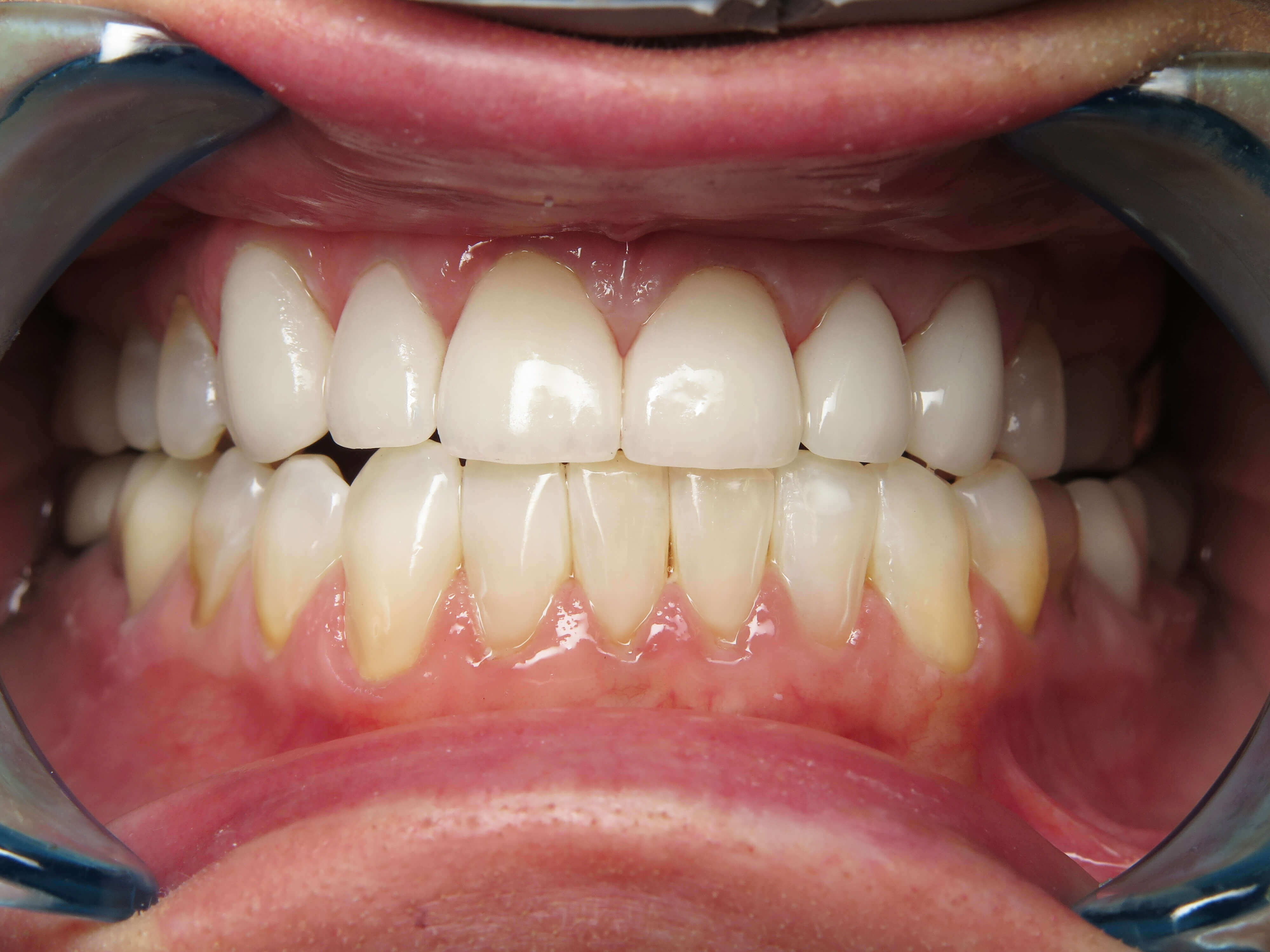 Invisalign&Veneer Before&After After