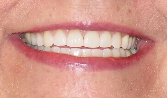 Invisalign Before and After After