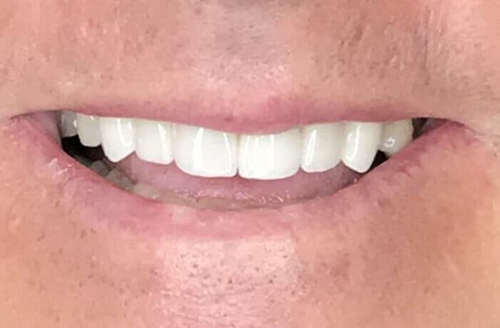 Smile Makeover / Veneers After